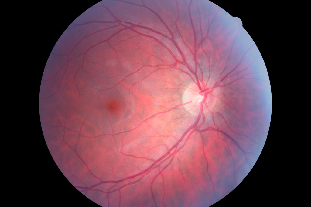 Robert's Left Eye, showing the cornea, foeva, capillaries and nerves